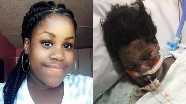 مصرف قرص های ضد اضطراب دختر نوجوان را تا پای مرگ کشاند
